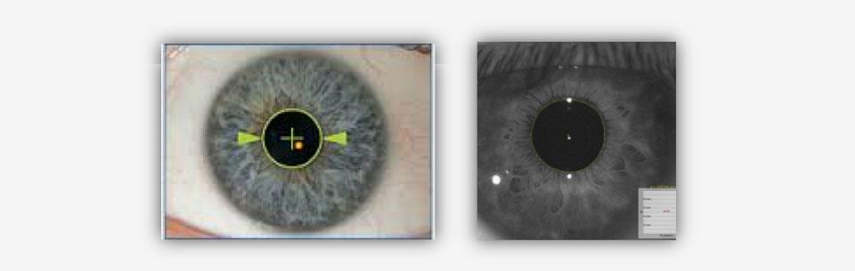 pupilllometria