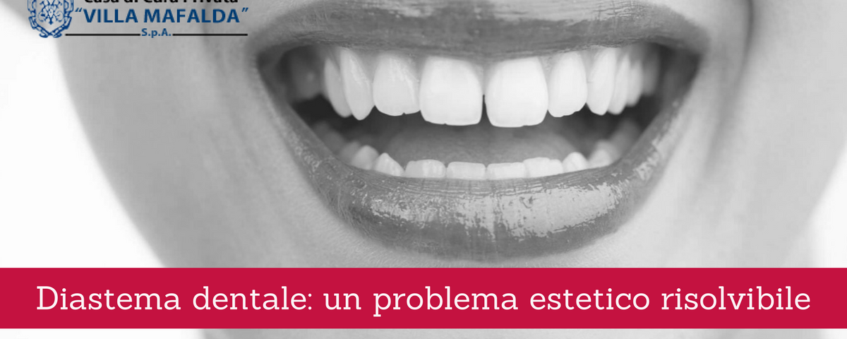 Diastema dentale, un problema estetico risolvibile 2 - Casa di Cura Villa Mafalda di Roma