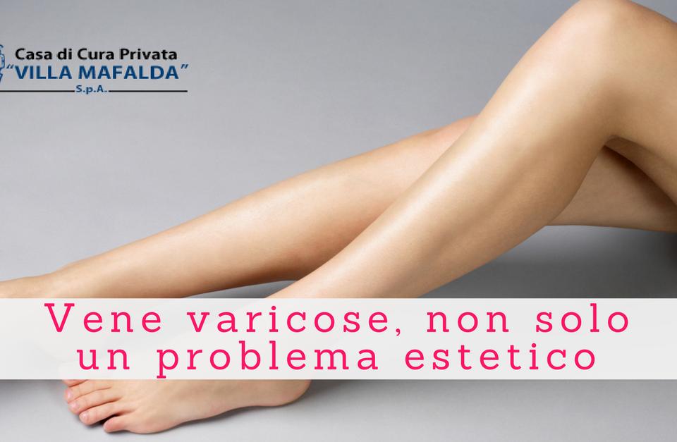 Vene varicose, non solo un problema estetico - Villa Mafalda Blog