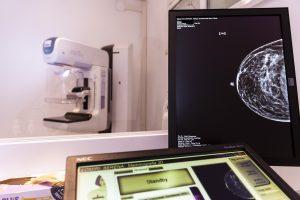 Mammografo con Tomosintesi 2 - Mammografia 3D - Casa di Cura Villa Mafalda